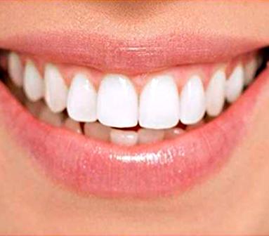 Servicios-Home-Odontologia-Estetica