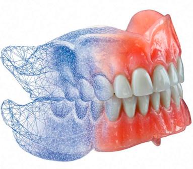 Servicios-Home_Protesis_Dental