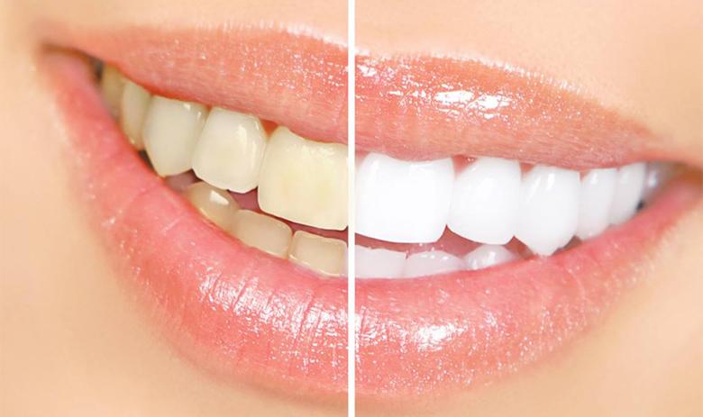 Blog-Juarez-Blanqueamiento-Dental