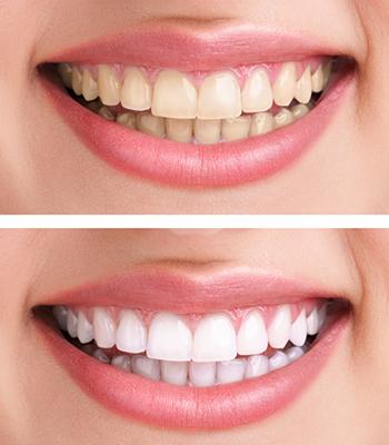 Antes-despues-Blog-Juárez-Blanqueamiento-Dental