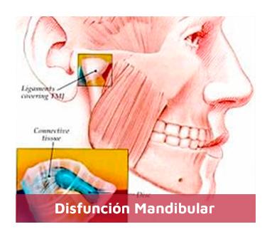 Disfuncion-Mandibular-1