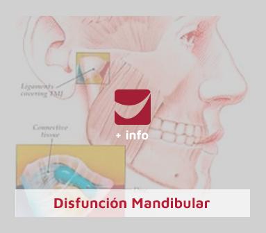 Disfuncion-Mandibular-2