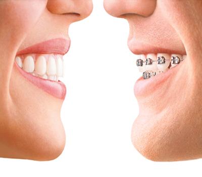 Ortodoncia-Seccion