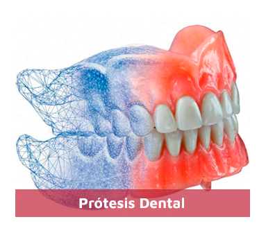 Protesis-Dental-1