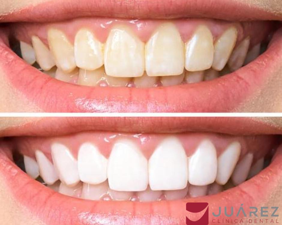 blanqueamiento-dental-juarez